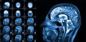 The Long-Term Effects of Traumatic Brain Injuries