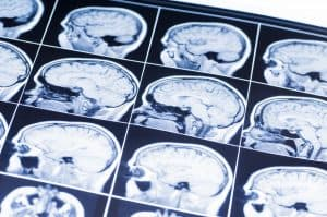 Traumatic Brain Injury and Its Link to Dementia