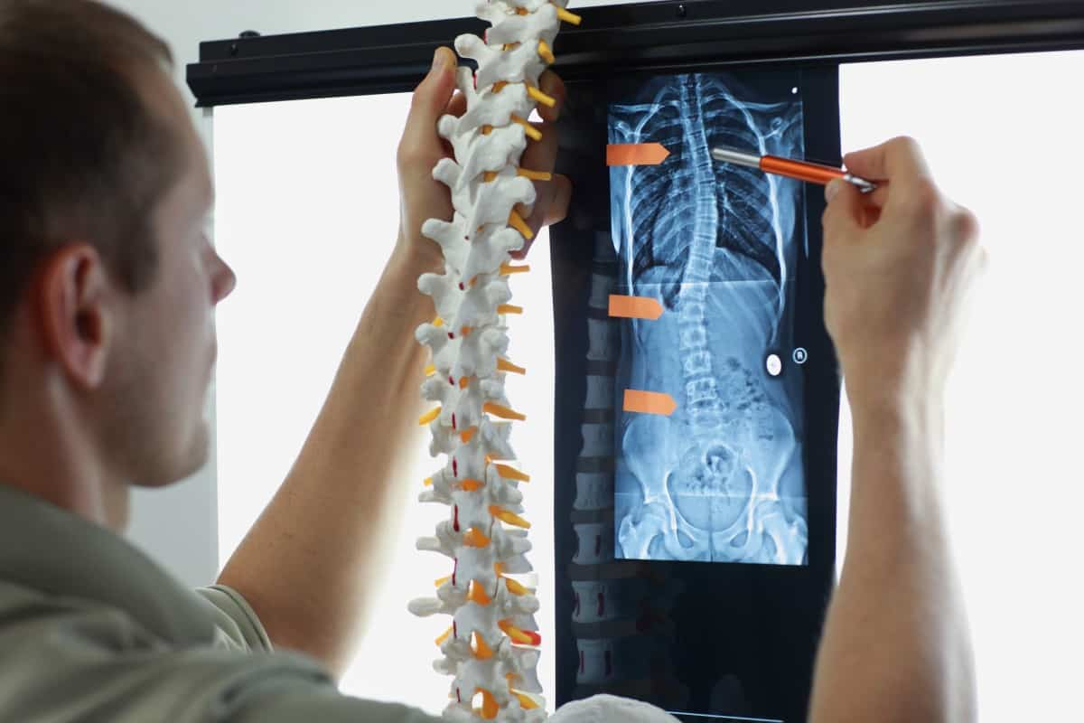 Common Back and Spine Injuries Caused by Negligence | Taylor & Ring